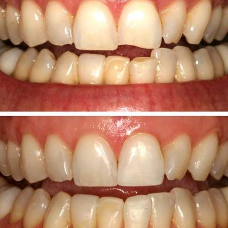 Detartrage dentaire avant apres