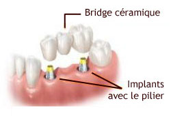 BRIDGE DENTS IMPLANT