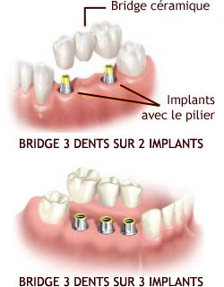 BRIDGE IMPLANT