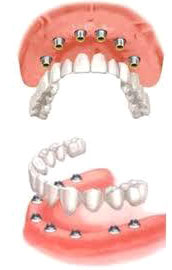 BRIDGE COMPLET IMPLANT