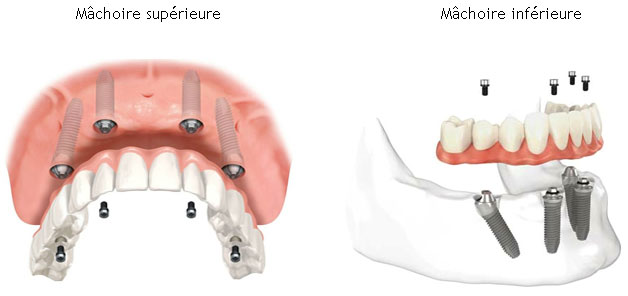 ALL-ON-4 PROTHESE SUR IMPLANT DENTAIRE