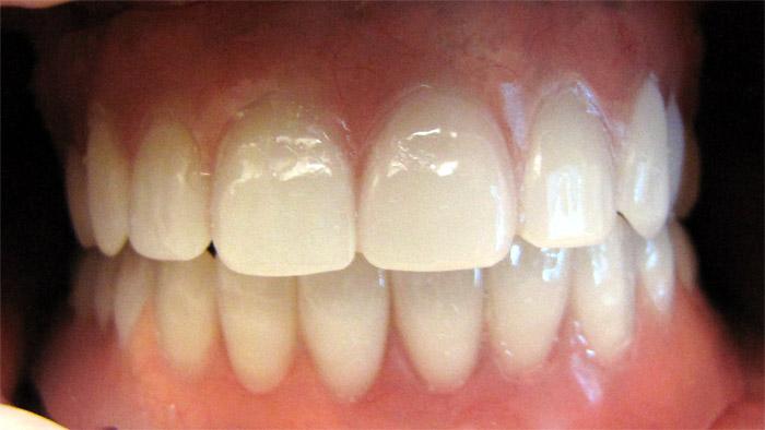 quel etude pour prothesiste dentaire Pour devenir prothésiste dentaire, il faut une formation de niveau bac et suivre un bac professionnel prothèse dentaire spécialisé il est possible de s'orienter dans cette voie tout de suite après la 3e.