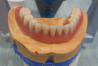 PROTHESE CLIPSEE IMPLANT